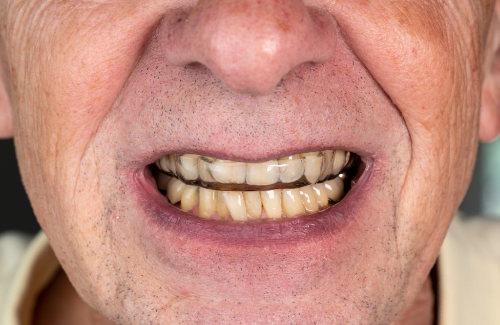Wearing a night guard after crown dental application